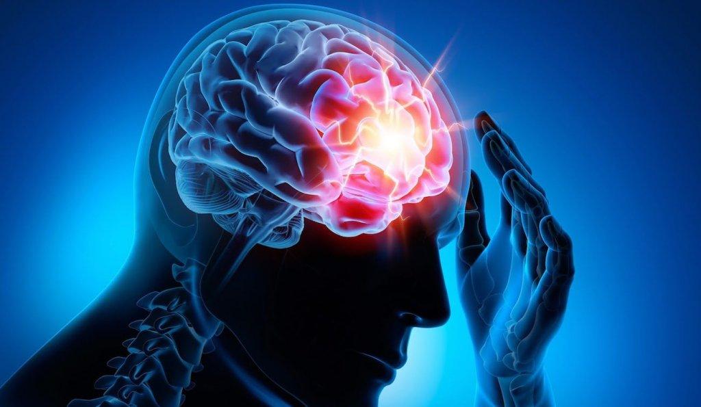 Симптомы при ишемическом инсульте
