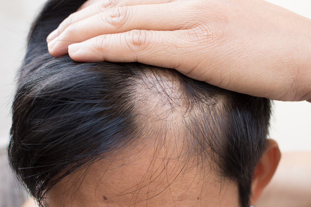 Выпадение волос. Очаговая алопеция у мужчин
