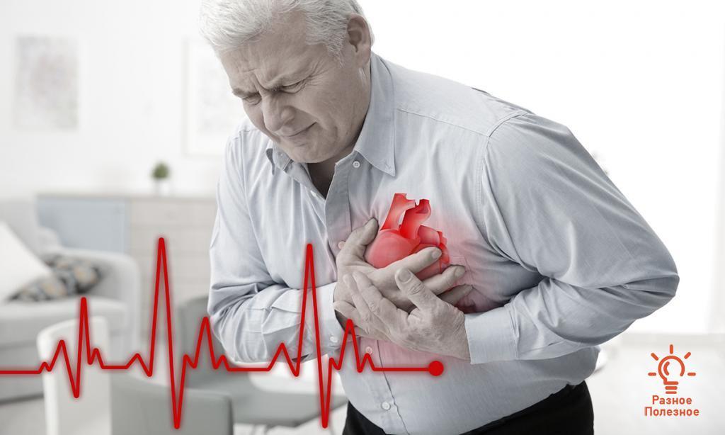 Стенокардия: причины, симптомы, первая помощь и профилактика